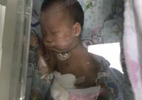 孩子一出生因早產或特殊情況被送去新生兒科,這是一種怎樣的體驗?