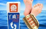 夏天最煩人的就是腳氣,腳氣頻發不好治,簡單方法,快速治癒腳氣
