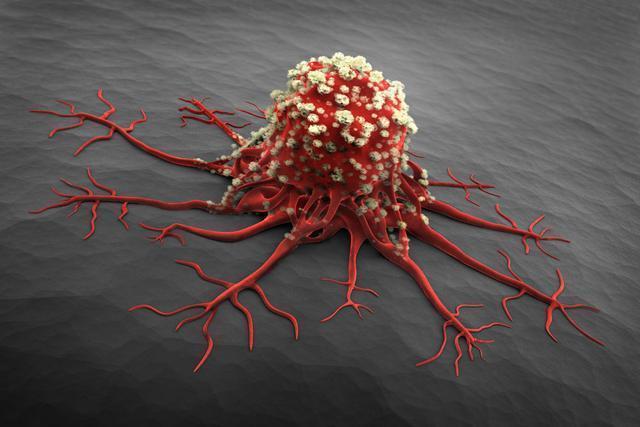 什麼是癌症?——癌症的一般認識