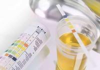 尿液是健康的晴雨表,如果你出現這3個表現,是腎臟疾病的徵兆