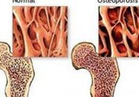 骨質疏鬆診斷法,骨質疏鬆如何預防?多吃橘子可預防骨質疏鬆