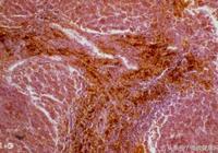 中醫:肝病人群要遠離4個壞習慣,多吃1種菌