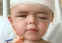英國3歲小女孩頭骨異常,手術打碎重組,稱自己長出了新頭