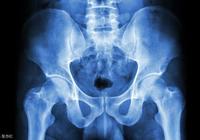髖關節結核、股骨頭壞死、髖關節炎,症狀有些像,該如何辨別