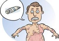 急性蕁麻疹