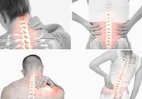 骨質疏鬆須防治
