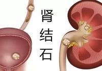 預防腎結石,首先了解腎結石的3大誤區!