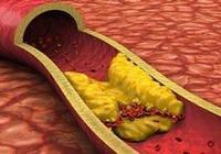 動脈硬化四種類型辨證施治