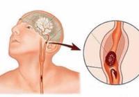 想要腦梗不再復發,日常注意這3點,保證血管暢通,預防二次腦梗