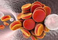 血栓的天然剋星,每天吃一點,給血管洗洗澡,一輩子不得血栓!