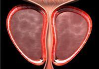男科醫生揭祕:這3件事會毀掉你的前列腺,別不重視!