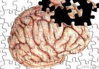 得了老年痴呆症怎麼辦?早期有哪些症狀?聽聽專家怎麼說