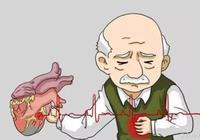 胸痛=冠心病?錯誤!冠心病不止胸痛