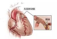 """關於心臟支架和心臟搭橋,據說80%的人都""""傻傻分不清"""""""