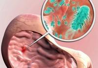 什麼情況下會感染幽門螺桿菌?如何預防?