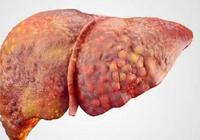 脂肪肝不用怕,做好預防和控制就不會變肝癌,3個要點需謹記