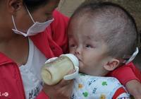 寶寶腦積水是媽媽吃出來的?