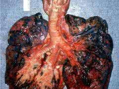 怎麼反駁抽菸有害身體健康?