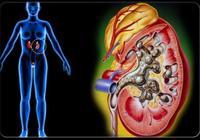 十分之一的人會得腎結石,做好這十一點,預防腎結石