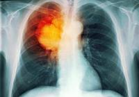 肺癌會引起哪些其它病