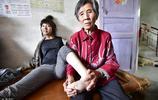 江西80後女孩,兒時發高燒患怪病,不想受折磨願早日離世捐獻器官