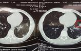 澳洲醫生判她癌症晚期,她卻在中國治好了