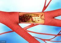 動脈硬化怎麼來的?專家提醒:5大原因加速動脈硬化,儘早預防!