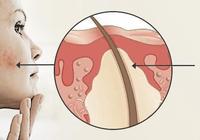 痤瘡的診療方法