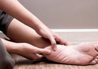 腳後跟痛怎麼辦?中醫治療注意事項及治療方法解析