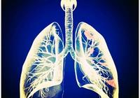 肺癌幫:肺癌早期發現,患者五年生存率可達60%