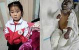 農村一家三口燒成重傷,中秋節奶奶想回家,說先救倆孫女