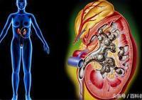 腎結石早期有什麼徵兆?得了腎結石我們應該怎麼辦?