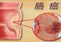大腸癌的早期信號,及時採取措施,早期90%的大腸癌可以治癒