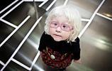 白化病(albinism)是一種較常見的皮膚疾病