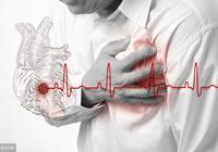 合併冠心病問題,血壓血脂血糖如何控制達標?來看看醫生怎麼說