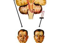 面癱的基本診斷治療