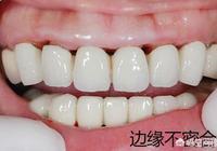 烤瓷牙裝了十年,現在塞東西很嚴重,很痛,用牙線牙籤剔除都出血怎麼辦?