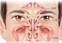 鼻竇炎如何治療老人鼻竇炎的八大誘因