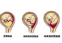 若是孕媽胎盤位置低,這個危險動作一定不要有,避免危及胎兒
