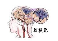 高血壓為什麼會腦梗是不是血稠?