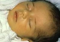 新生兒常見疾病