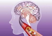 身體出現的這5種變化,很可能會引發腦梗,你別忽視了