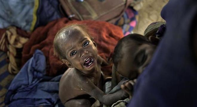 每天7快錢讓這些窮人活在痛苦中,實拍10大讓國民吃不飽的國家