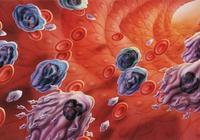白血病是傳染病嗎?輸血會傳染上白血病嗎?