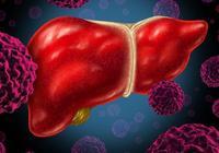 體檢查出是肝癌,還能活多久?如何預防肝癌晚期?記住這1點