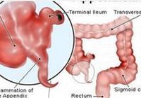 食管癌診治指南解讀 胸段食管癌的外科治療