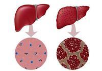 肝臟有炎症 5個特徵比較明顯,常喝1種水 沖走肝臟毒素