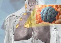 老菸民注意:出現這樣的咳嗽,你應該小心肺癌