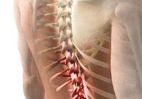 脊椎關節動作屏障與動態力學
