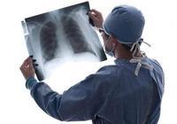 年年體檢,最後還是患了肺癌,肺癌篩查到底有用嗎?